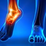 Foot & Ankle Surgery - Orthopaedic consultants eastbourne