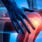 Knee Surgery - Orthopaedic consultants eastbourne